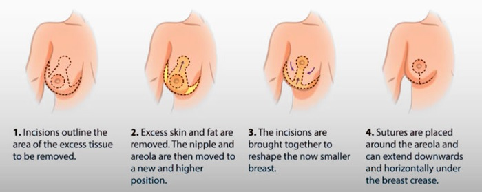 Breast Reduction - Cosmetic Surgery Islamabad-1883