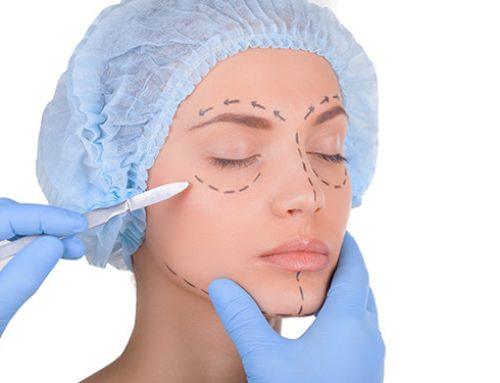 The Effective Method To Get Good Plastic Surgery